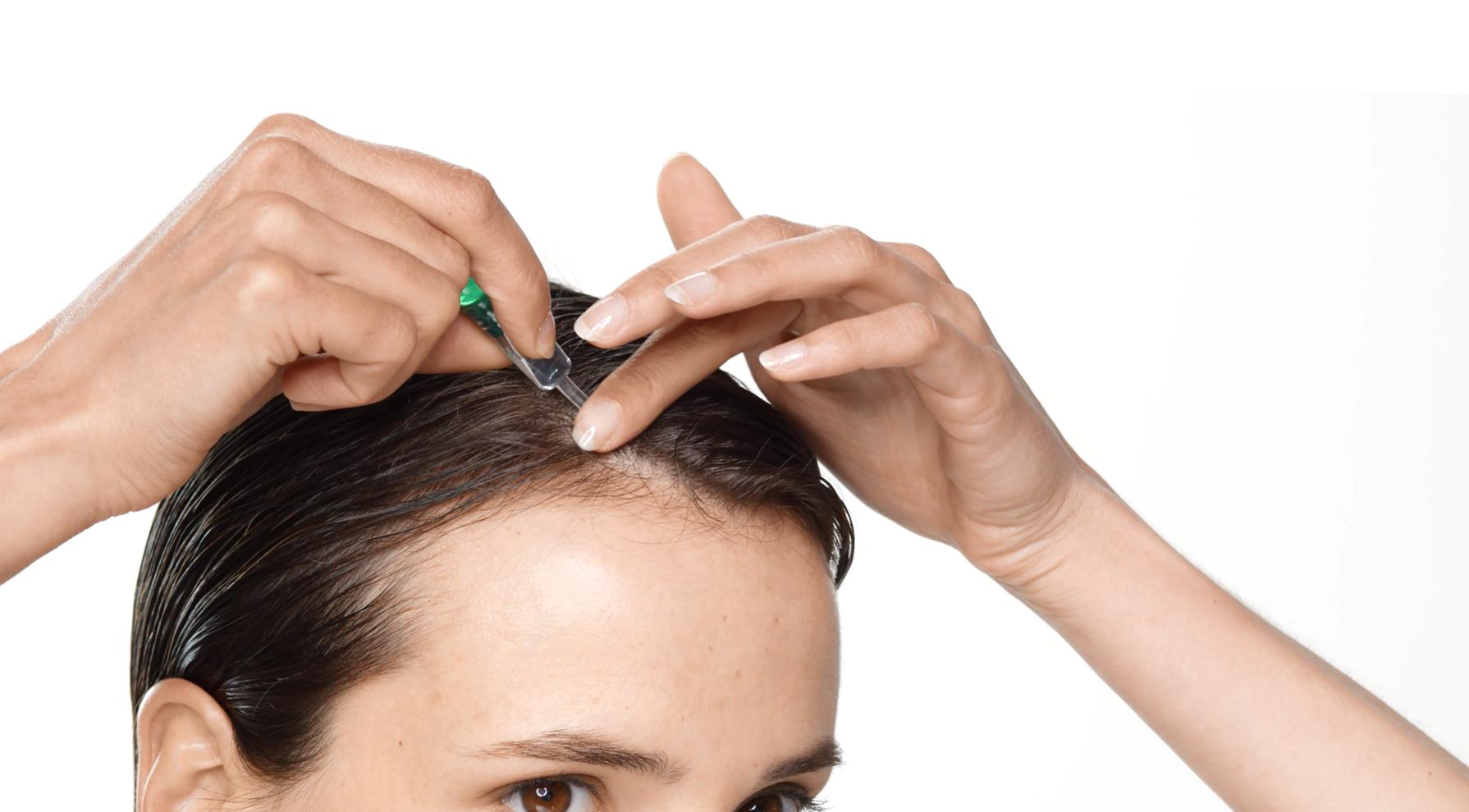 Behandlung von temporärem Haarausfall